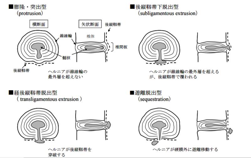 Macnabの分類 椎間板ヘルニア