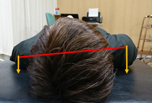 仰臥位での肩甲骨位置